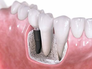 dental-implants-left (1).jpg